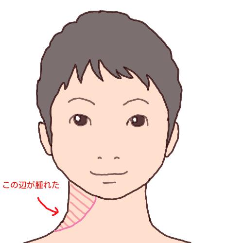 首が腫れた女性のイラスト