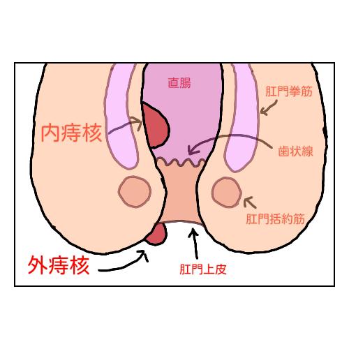 内痔核・外痔核のイラスト